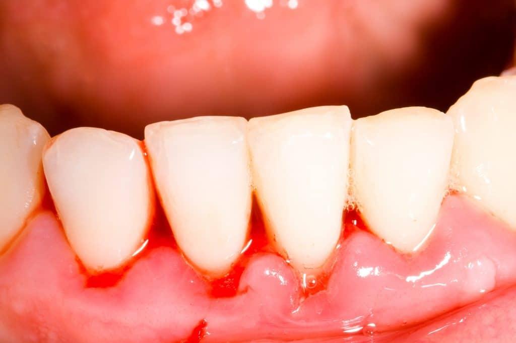 Encías sangrantes y periodoncia en Sabadell, Clínica Dental Gemma Farré