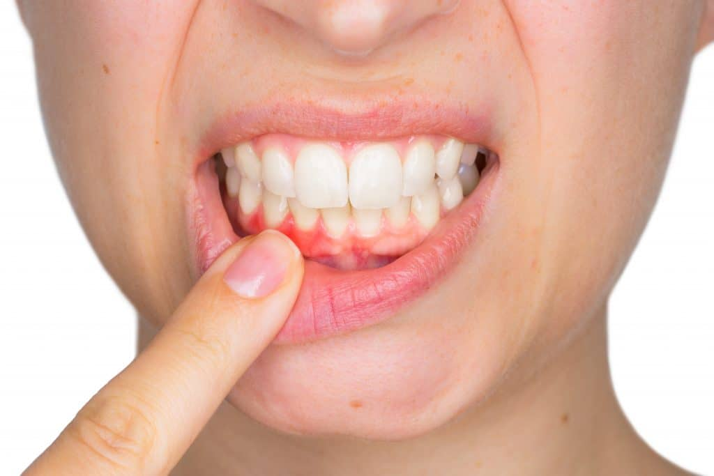 Periodoncia en Sabadell, en Clínica Dental Gemma Farré
