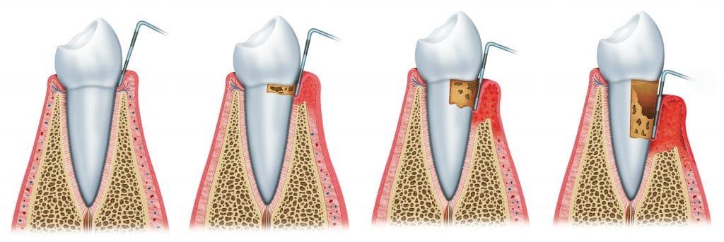 Enfermedad periodontal. Tratamientos de periodoncia en Sabadell en Clínica Dental Gemma Farré.