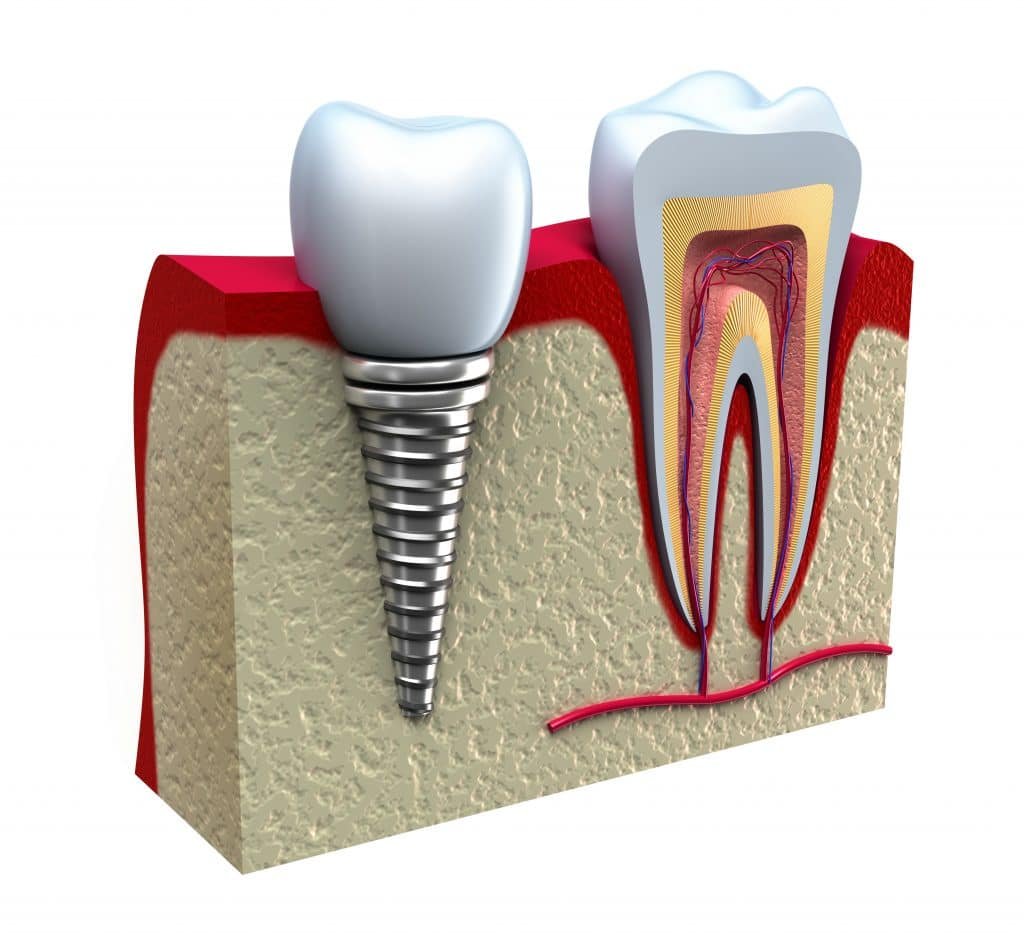 Osteointegración implante dental