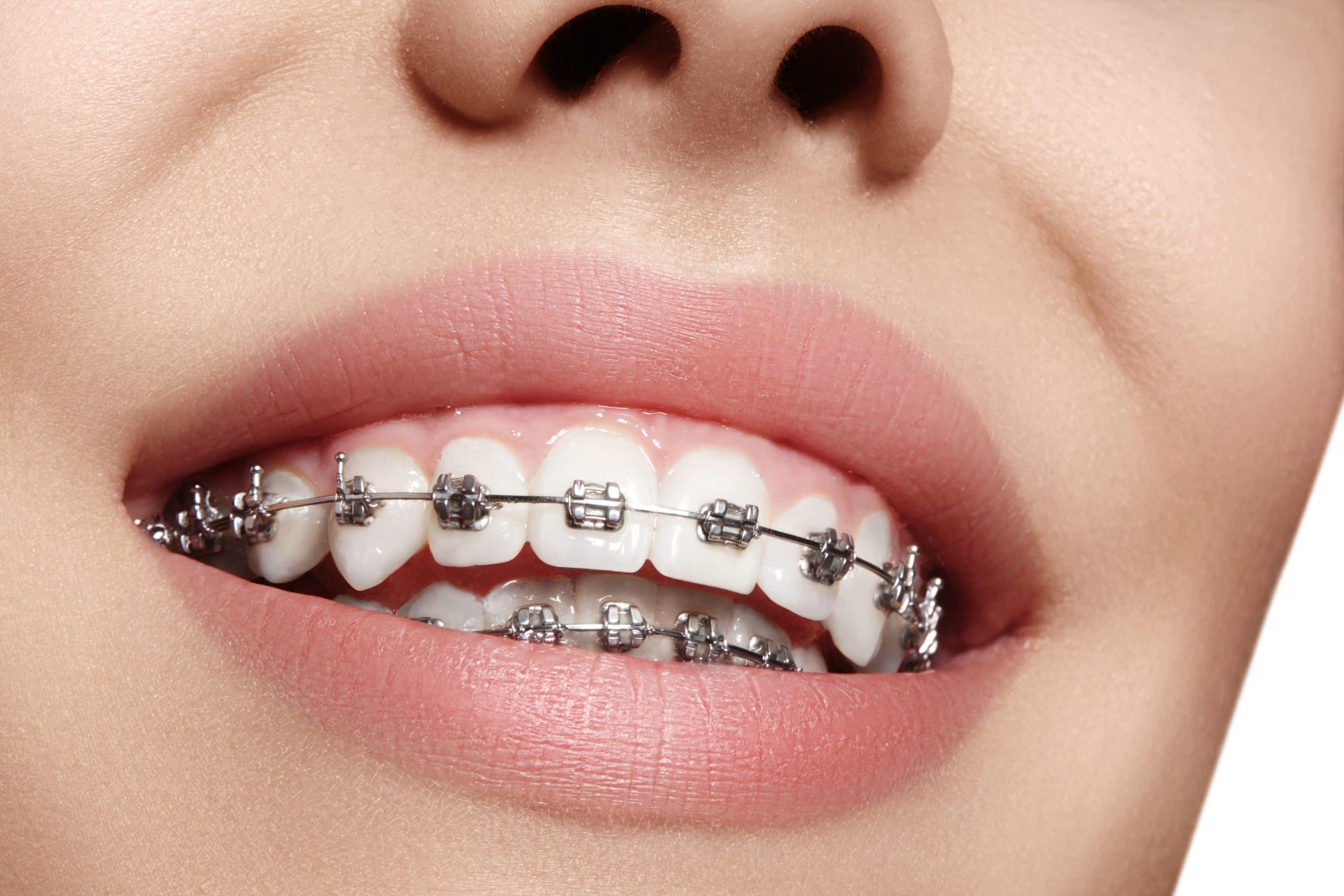 """""""Ortodoncia"""