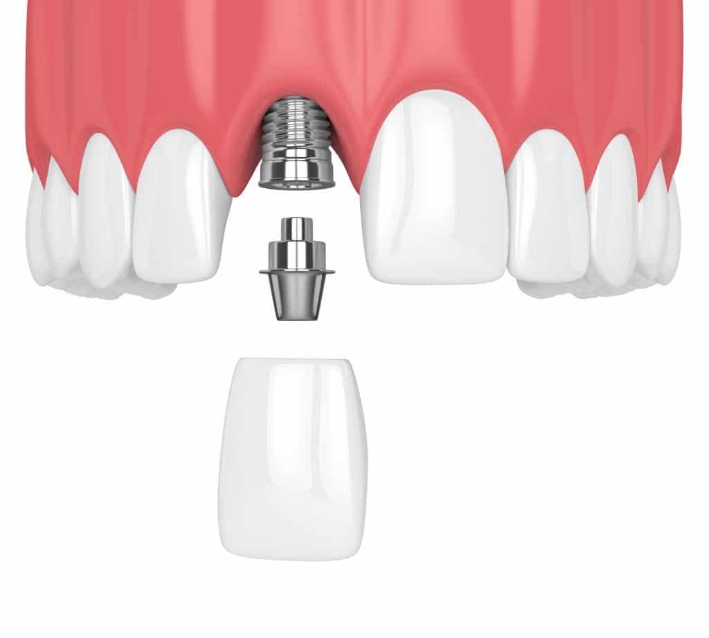 ¿Cómo se colocan los implantes dentales? Proceso de osteointegración