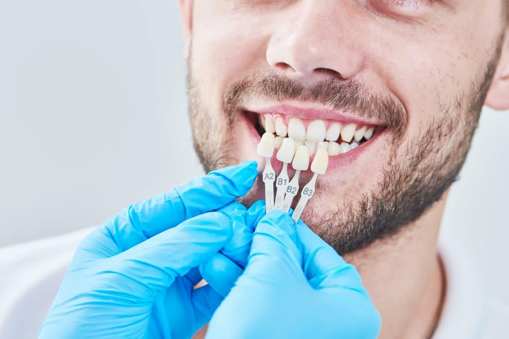 Casos clínicos de estética dental en Sabadell