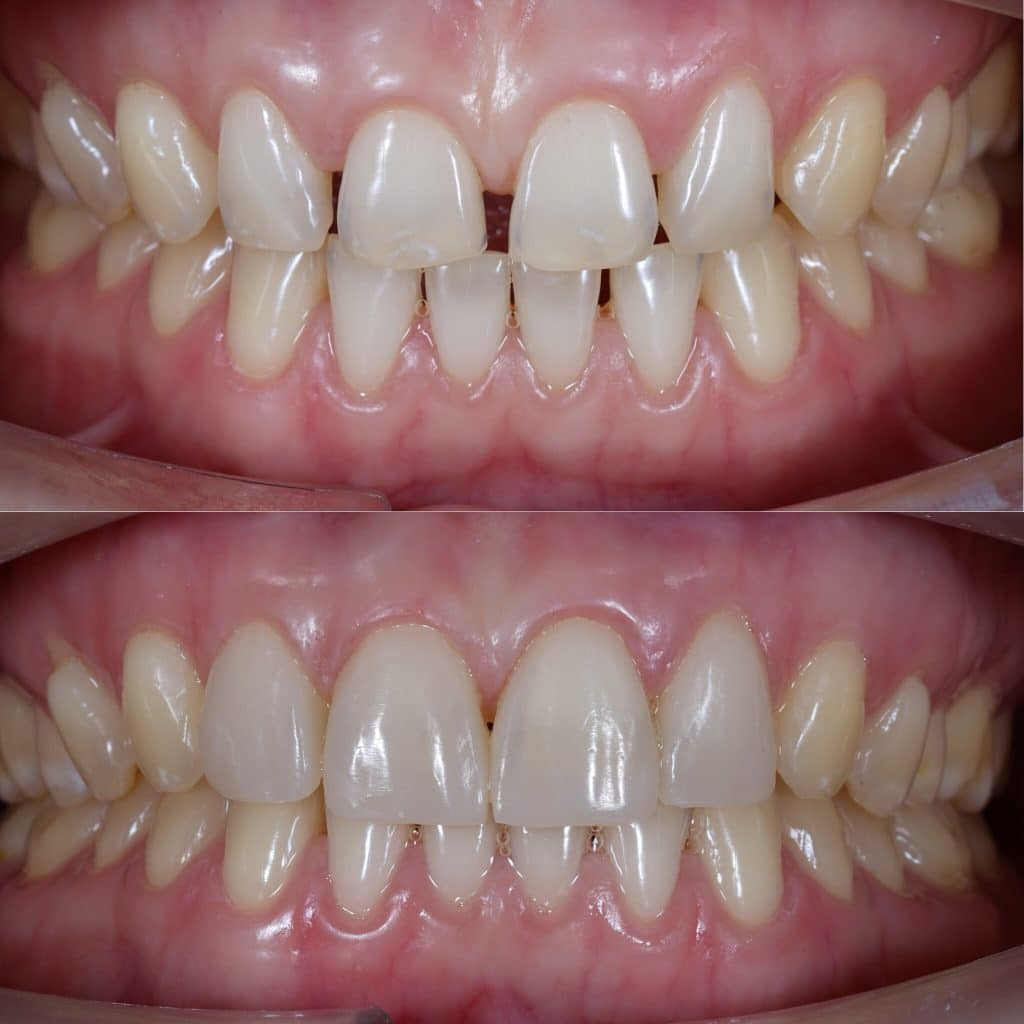 Carillas dentales para corregir diastema.
