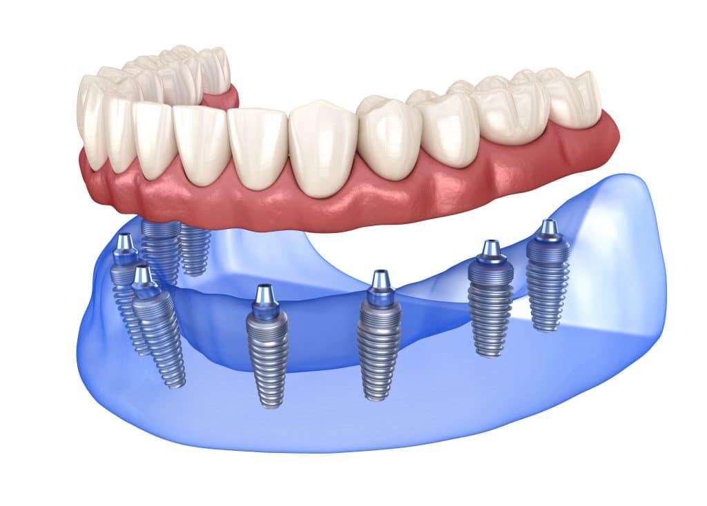 Dentadura extraíble soportada por implantes dentales.