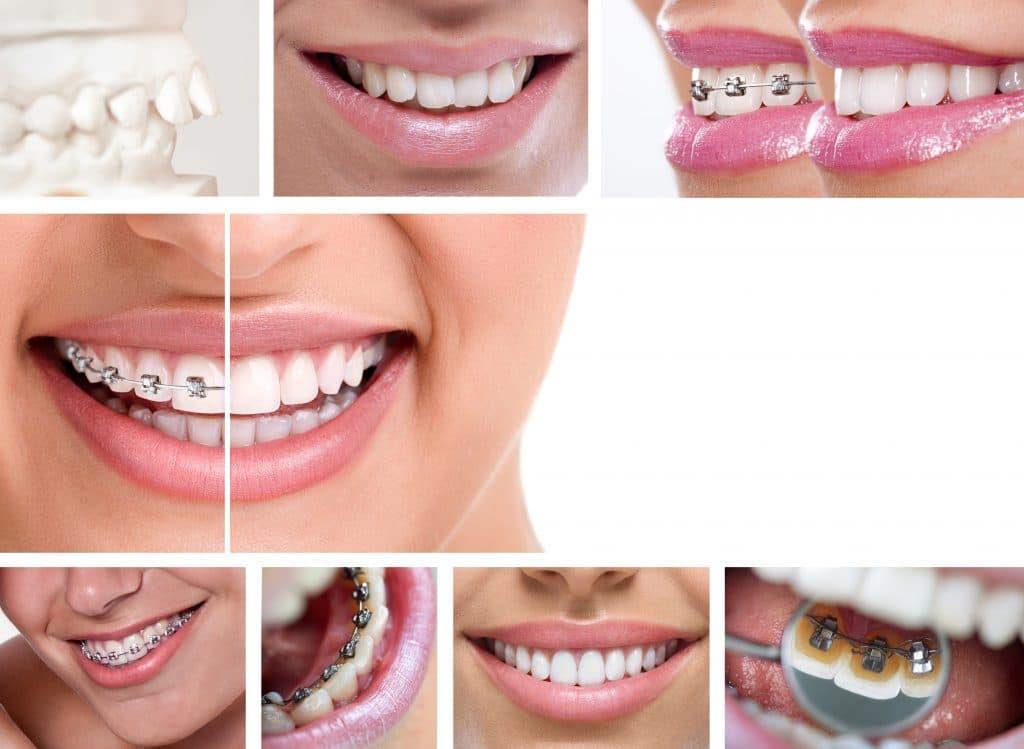 Tipos de ortodoncia y brackets.