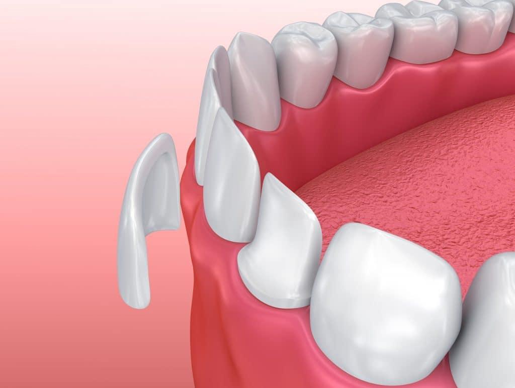 Carillas dentales en Sabadell, Clínica Dental Gemma Farré