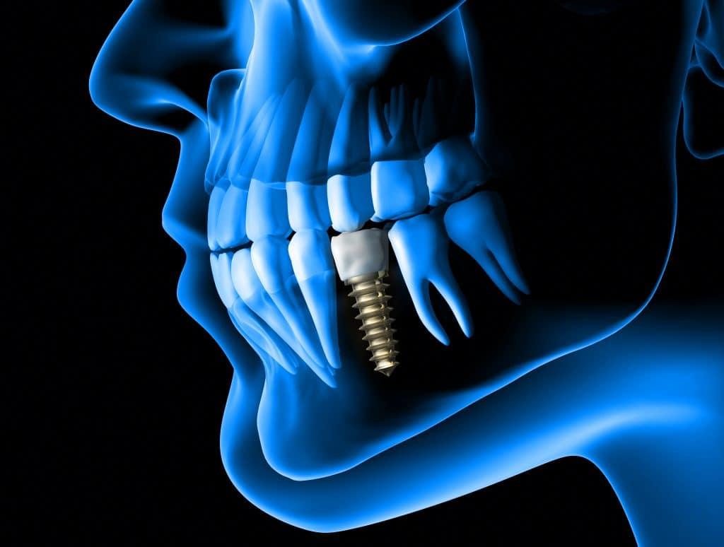 Implantes dentales, una solución a largo plazo para tus dientes caídos.