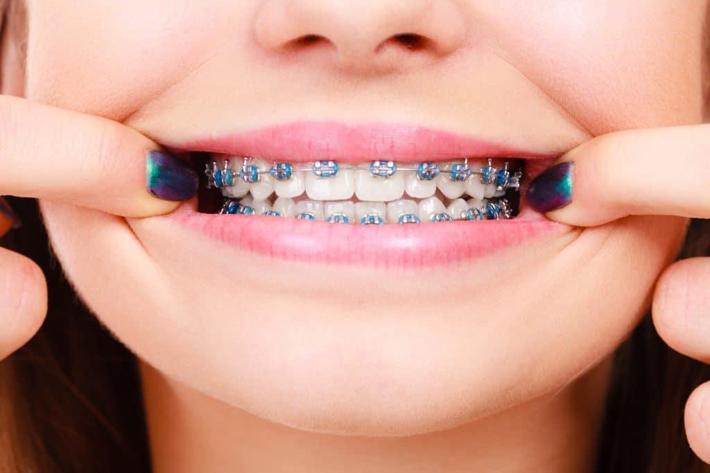 Qué podemos corregir con ortodoncia y brackets.