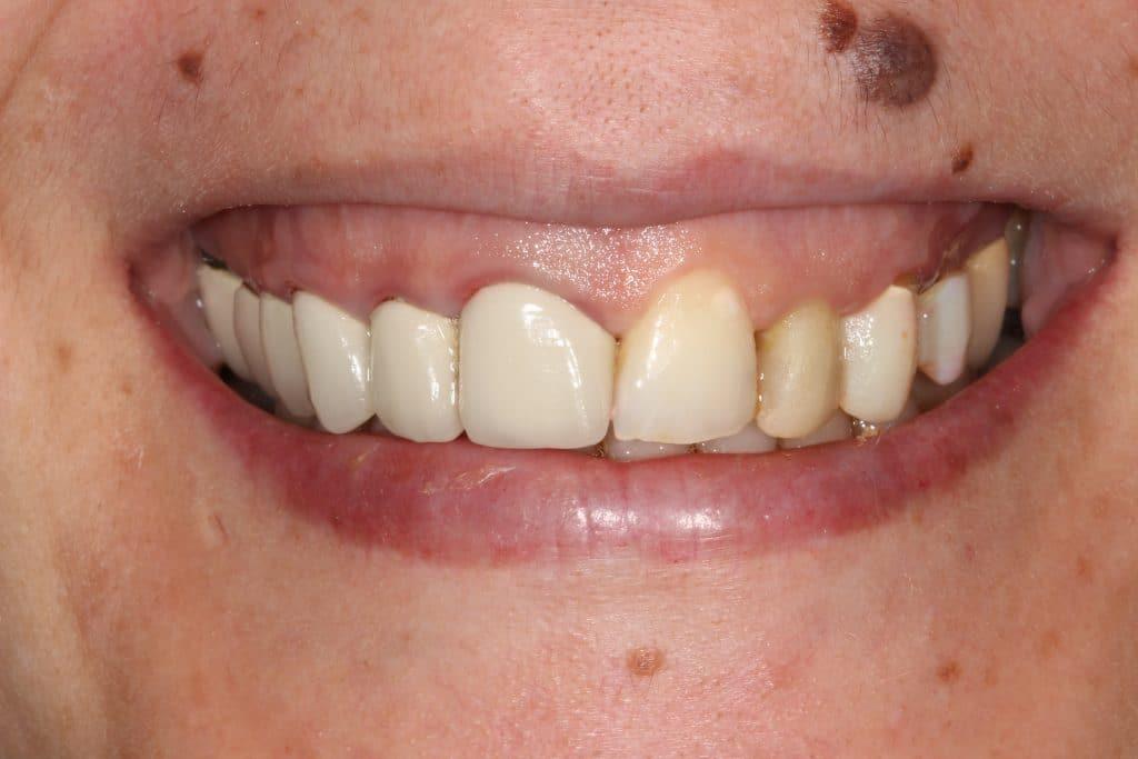 Caso prótesis dentales: situación inicial de caso clínico fundas de zirconio
