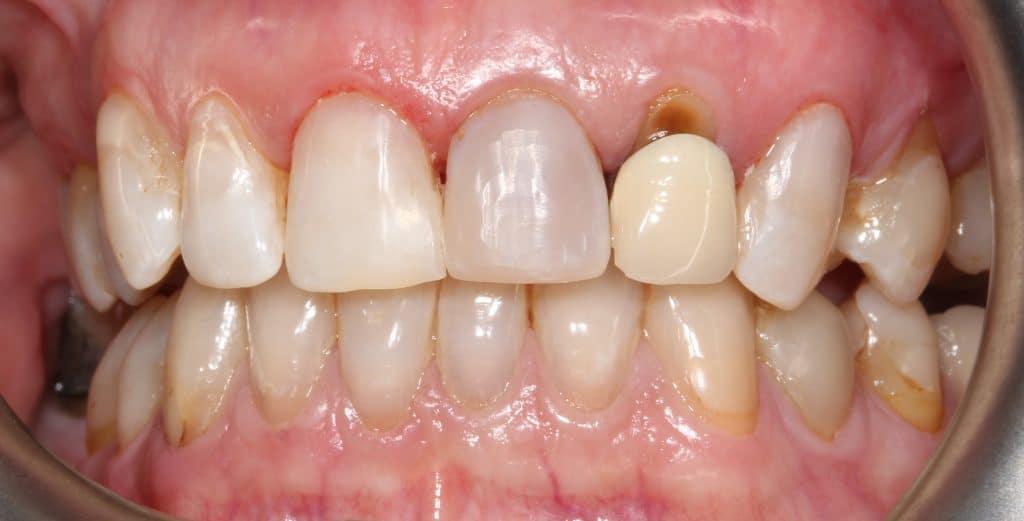 Caso clínico 2 prótesis dentales en Sabadell