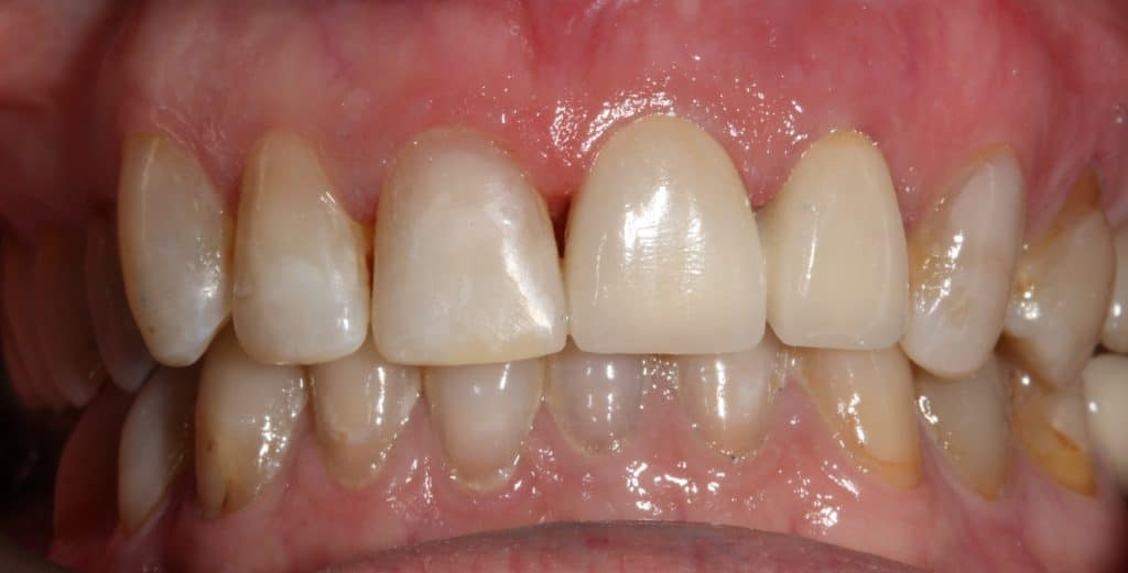 Caso clínico 2 prótesis dentales en Sabadell - Final