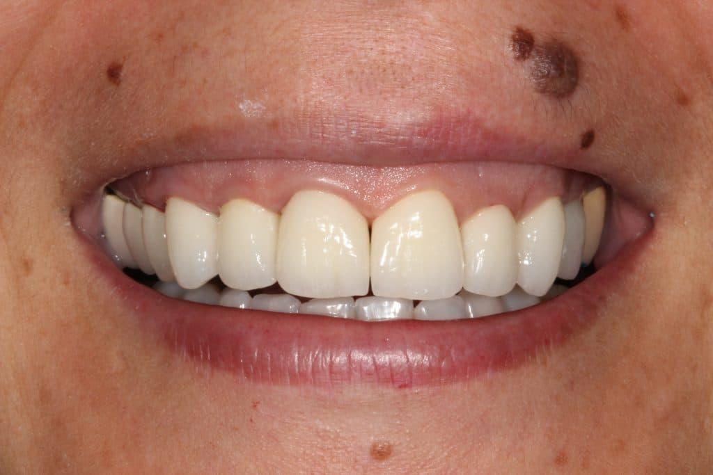 Caso prótesis dentales: Resultado final fundas dentales de zirconio
