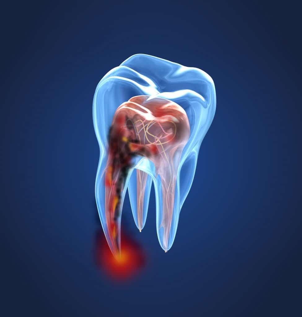 Inflamación de encías como síntoma de estar sufriendo un proceso infeccioso en la raíz. Endodoncia