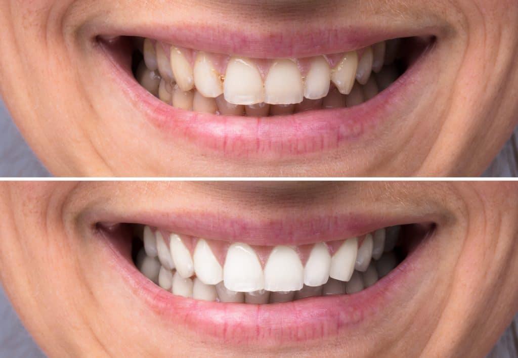 Blanqueamiento dental en Sabadell, Clínica Dental Gemma Farré