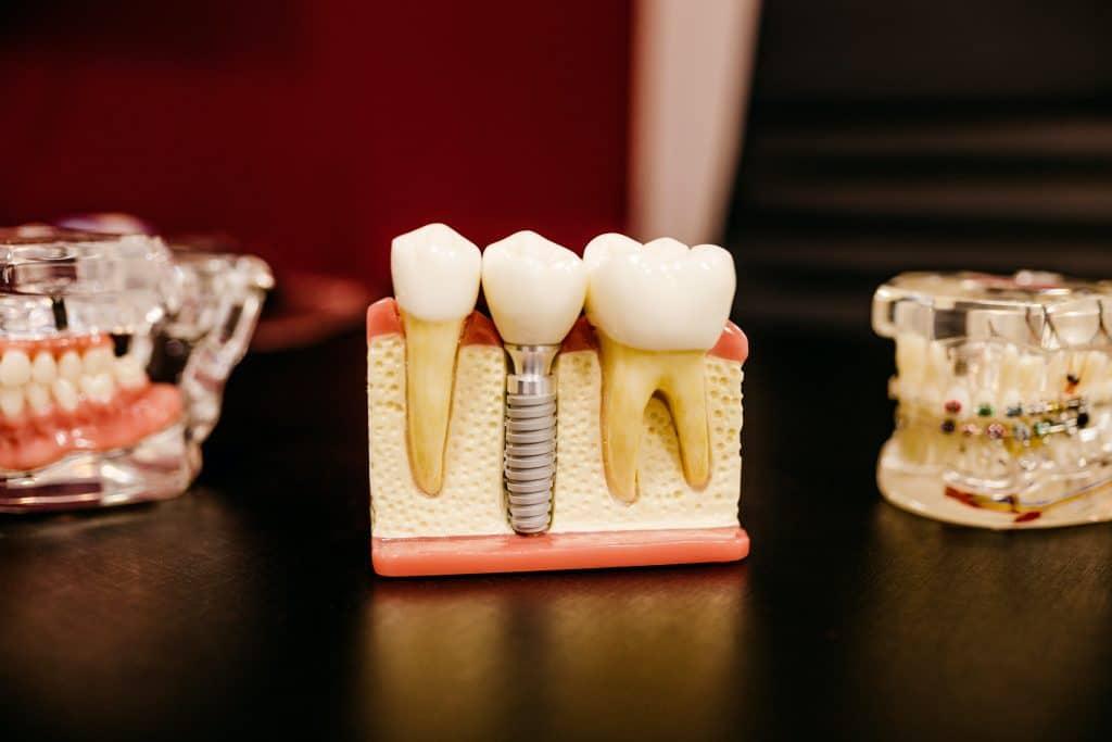 implantes y prótesis para reponer dientes caídos